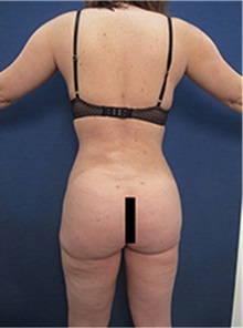 Buttock Lift with Augmentation After Photo by Arian Mowlavi, MD; Laguna Beach, CA - Case 35443