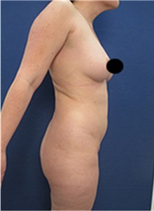 Buttock Lift with Augmentation Before Photo by Arian Mowlavi, MD; Laguna Beach, CA - Case 35443