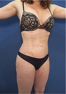 Liposuction After Photo by Arian Mowlavi, MD; Laguna Beach, CA - Case 35452
