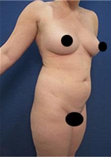 Liposuction Before Photo by Arian Mowlavi, MD; Laguna Beach, CA - Case 35452