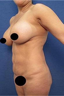 Liposuction Before Photo by Arian Mowlavi, MD; Laguna Beach, CA - Case 35457