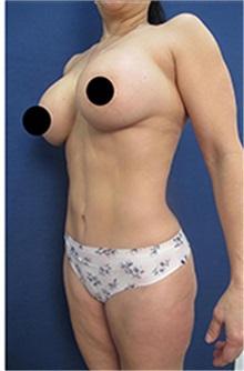 Tummy Tuck After Photo by Arian Mowlavi, MD; Laguna Beach, CA - Case 35458