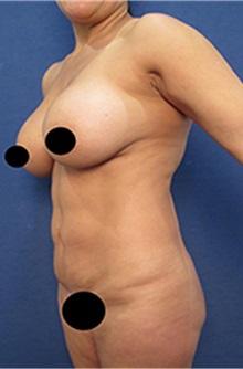 Tummy Tuck Before Photo by Arian Mowlavi, MD; Laguna Beach, CA - Case 35458