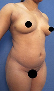 Body Contouring Before Photo by Arian Mowlavi, MD; Laguna Beach, CA - Case 35459