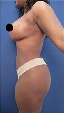 Body Contouring After Photo by Arian Mowlavi, MD; Laguna Beach, CA - Case 35459