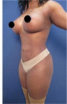 Breast Augmentation After Photo by Arian Mowlavi, MD; Laguna Beach, CA - Case 35460