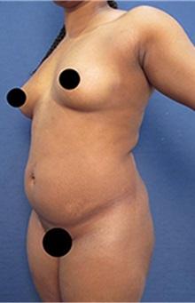 Breast Augmentation Before Photo by Arian Mowlavi, MD; Laguna Beach, CA - Case 35460