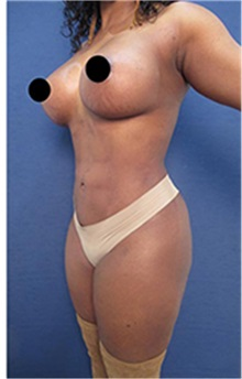 Liposuction After Photo by Arian Mowlavi, MD; Laguna Beach, CA - Case 35463