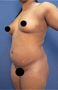 Liposuction Before Photo by Arian Mowlavi, MD; Laguna Beach, CA - Case 35463