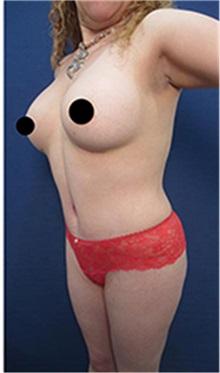 Breast Augmentation After Photo by Arian Mowlavi, MD; Laguna Beach, CA - Case 35551
