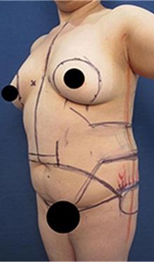 Breast Augmentation Before Photo by Arian Mowlavi, MD; Laguna Beach, CA - Case 35551
