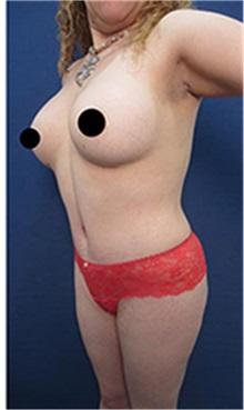 Liposuction After Photo by Arian Mowlavi, MD; Laguna Beach, CA - Case 35552