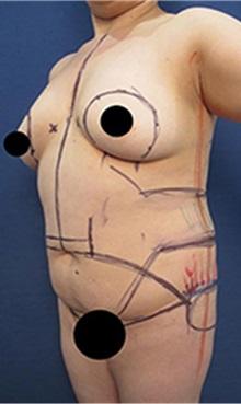 Liposuction Before Photo by Arian Mowlavi, MD; Laguna Beach, CA - Case 35552