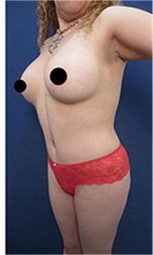 Tummy Tuck After Photo by Arian Mowlavi, MD; Laguna Beach, CA - Case 35553