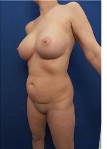 Body Contouring After Photo by Arian Mowlavi, MD; Laguna Beach, CA - Case 35555