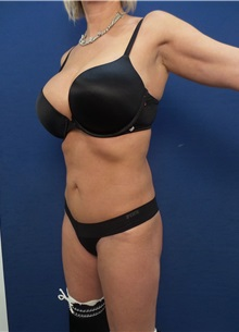 Body Contouring Before Photo by Arian Mowlavi, MD; Laguna Beach, CA - Case 35555