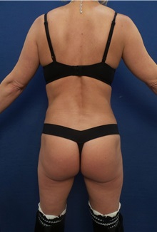 Buttock Lift with Augmentation After Photo by Arian Mowlavi, MD; Laguna Beach, CA - Case 35556