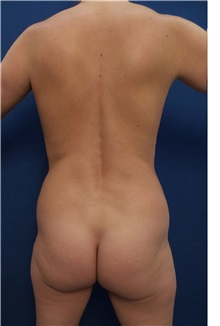 Buttock Lift with Augmentation Before Photo by Arian Mowlavi, MD; Laguna Beach, CA - Case 35556