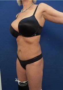 Liposuction After Photo by Arian Mowlavi, MD; Laguna Beach, CA - Case 35599