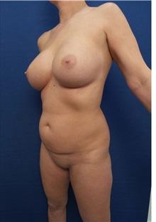 Liposuction Before Photo by Arian Mowlavi, MD; Laguna Beach, CA - Case 35599
