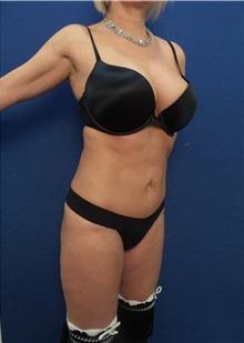 Tummy Tuck After Photo by Arian Mowlavi, MD; Laguna Beach, CA - Case 35601