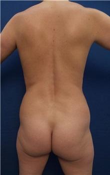 Tummy Tuck Before Photo by Arian Mowlavi, MD; Laguna Beach, CA - Case 35601