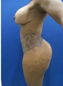 Body Contouring After Photo by Arian Mowlavi, MD; Laguna Beach, CA - Case 35603