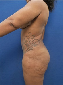 Body Contouring Before Photo by Arian Mowlavi, MD; Laguna Beach, CA - Case 35603