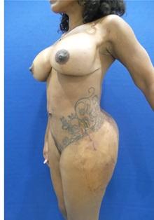 Breast Augmentation After Photo by Arian Mowlavi, MD; Laguna Beach, CA - Case 35604