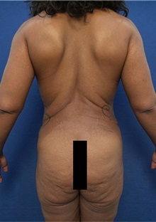 Buttock Lift with Augmentation Before Photo by Arian Mowlavi, MD; Laguna Beach, CA - Case 35605