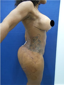 Buttock Lift with Augmentation After Photo by Arian Mowlavi, MD; Laguna Beach, CA - Case 35605