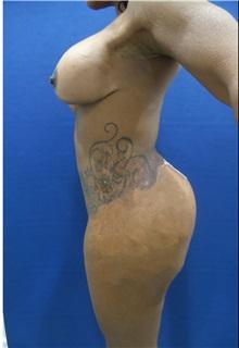 Liposuction After Photo by Arian Mowlavi, MD; Laguna Beach, CA - Case 35608