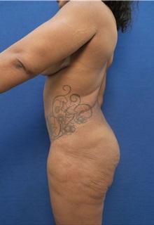 Liposuction Before Photo by Arian Mowlavi, MD; Laguna Beach, CA - Case 35608