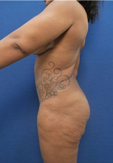Thigh Lift Before Photo by Arian Mowlavi, MD; Laguna Beach, CA - Case 35609