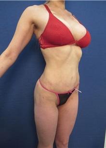 Body Contouring After Photo by Arian Mowlavi, MD; Laguna Beach, CA - Case 35610