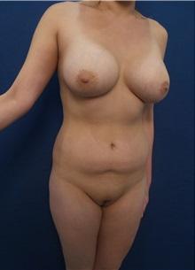 Body Contouring Before Photo by Arian Mowlavi, MD; Laguna Beach, CA - Case 35610