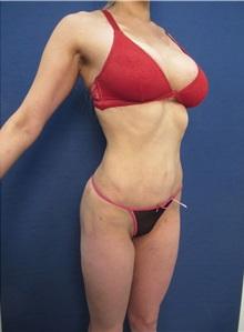 Liposuction After Photo by Arian Mowlavi, MD; Laguna Beach, CA - Case 35611