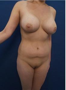 Liposuction Before Photo by Arian Mowlavi, MD; Laguna Beach, CA - Case 35611