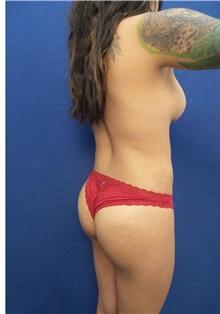 Body Contouring After Photo by Arian Mowlavi, MD; Laguna Beach, CA - Case 35615