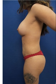 Breast Augmentation After Photo by Arian Mowlavi, MD; Laguna Beach, CA - Case 35616