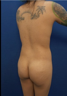 Buttock Implants Before Photo by Arian Mowlavi, MD; Laguna Beach, CA - Case 35617