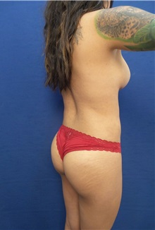 Liposuction After Photo by Arian Mowlavi, MD; Laguna Beach, CA - Case 35619