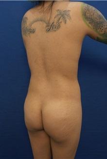 Liposuction Before Photo by Arian Mowlavi, MD; Laguna Beach, CA - Case 35619