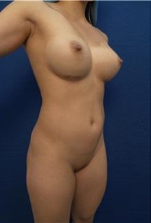 Body Contouring Before Photo by Arian Mowlavi, MD; Laguna Beach, CA - Case 35620