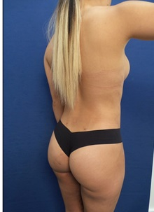 Body Contouring After Photo by Arian Mowlavi, MD; Laguna Beach, CA - Case 35620