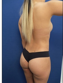 Buttock Lift with Augmentation After Photo by Arian Mowlavi, MD; Laguna Beach, CA - Case 35623