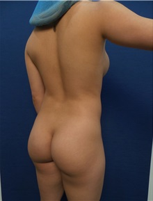 Buttock Lift with Augmentation Before Photo by Arian Mowlavi, MD; Laguna Beach, CA - Case 35623