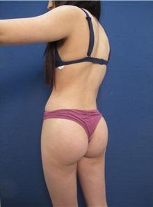 Body Contouring After Photo by Arian Mowlavi, MD; Laguna Beach, CA - Case 35624