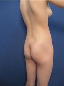 Buttock Implants Before Photo by Arian Mowlavi, MD; Laguna Beach, CA - Case 35625