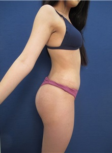 Buttock Implants After Photo by Arian Mowlavi, MD; Laguna Beach, CA - Case 35625
